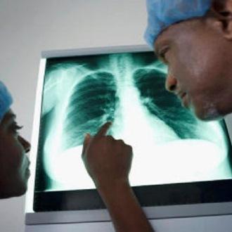 Tumore ai polmoni, 7 campanelli d'allarme da non..