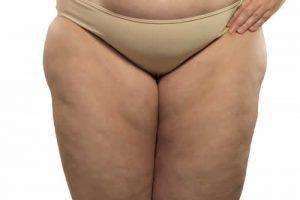 come eliminare il grasso delle cosce