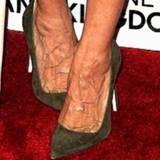 632df44d99 Con mignolo che fuoriesce dal sandalo e dita storte... Avete capito di chi  sono questi piedi? | Caffeina Magazine