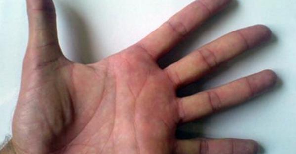 Rigidità articolare durante il sonno. 4 Modi per Gestire la Rigidità Mattutina Causata dall'Artrite