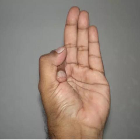 Ashwani-Mudra - Uomini Clinica Sessuale