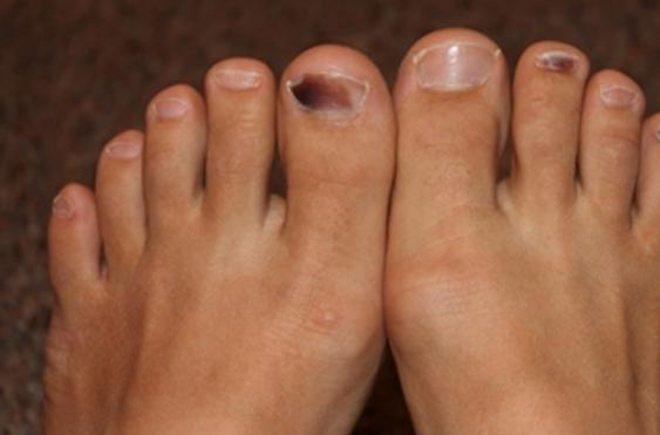 Passiamo alle macchie sotto le unghie dei piedi (ma anche delle mani). Hai  notato sotto un\u0027unghia una macchia scura e non hai preso botte,