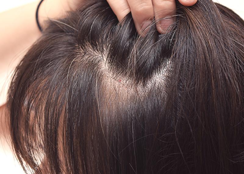 Lavare i capelli il giorno dopo la permanente