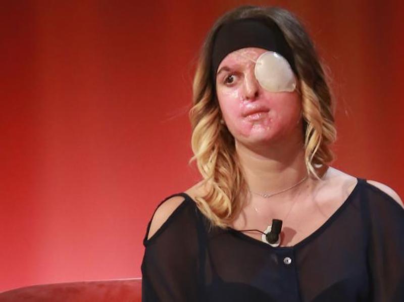 Insulti a Gessica Notaro, la ragazza sfregiata dall'acido: d