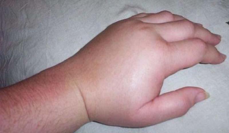Dolori alle Dita delle Mani