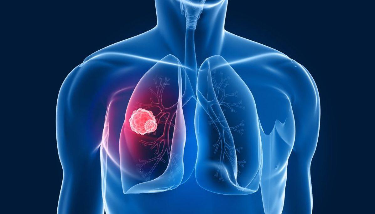 tumore polmone paolo stelvio bici