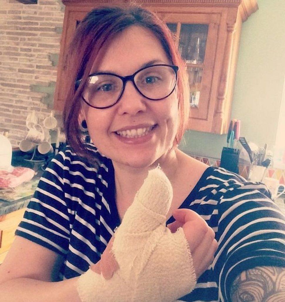 Alana Savers cancro unghia