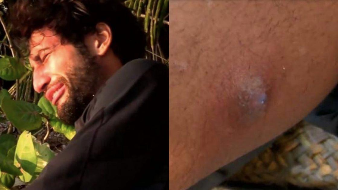 Supervivientes, Gianmarco Onestini morso da un ragno velenoso