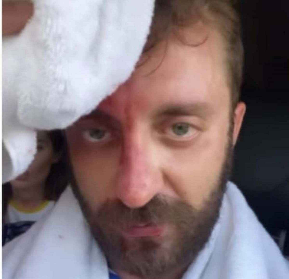 stefano corti iene ferita