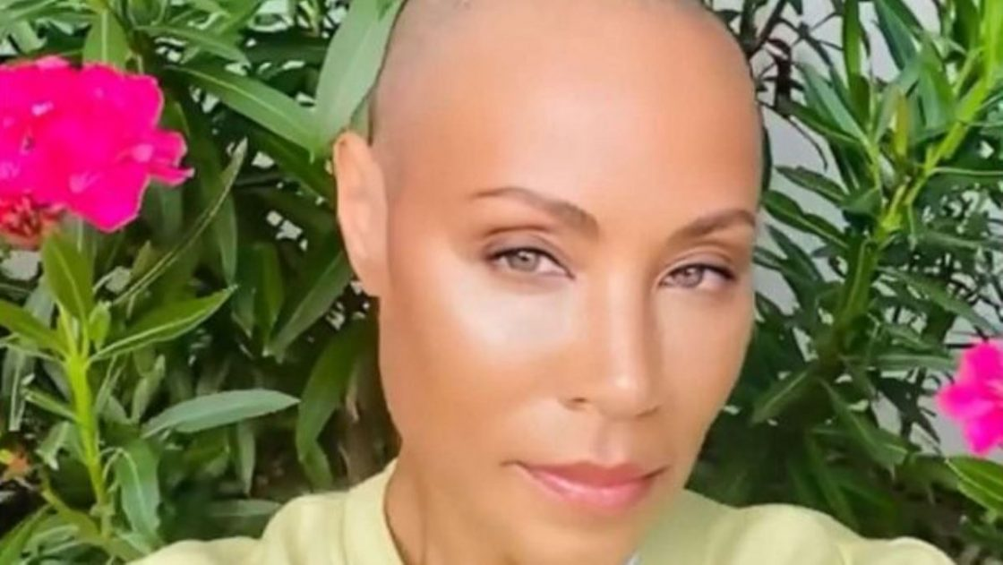 jada pinkett smith capelli rasati alopecia