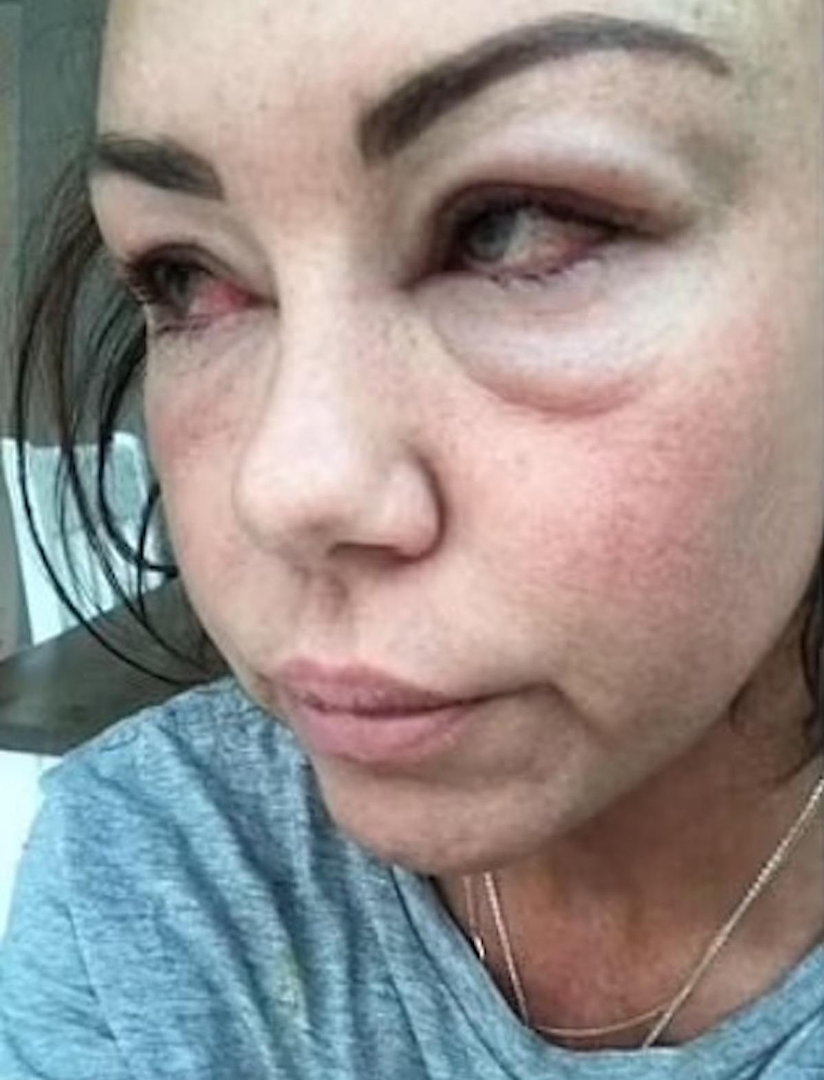 Michelle Heaton abuso alcol foto